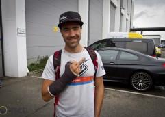 Nico_vouilloz_broken_hand_MG_3662
